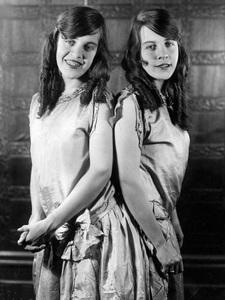 Violet and Daisy Hiltoncirca 1920s** I.V. - Image 23543_0003